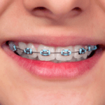 pediatric orthodontics in Bangalore at growing smiles dental