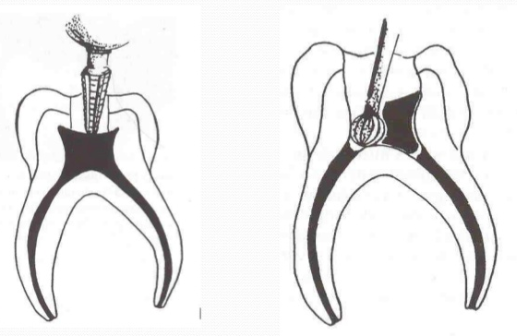 Pulpotomy dental procedure