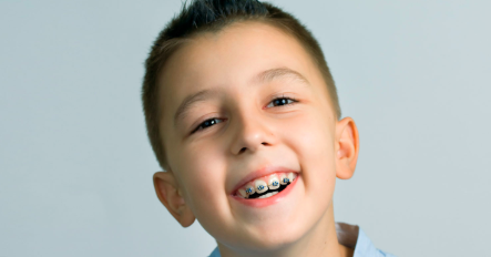 Kids dentist in Bangalore