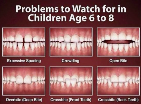 Why Choose a Pediatric Dentist Over a General Dentist for your child
