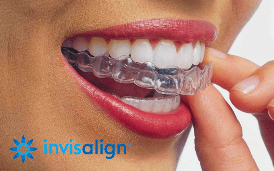 Invisalign certified Orthodontists at Growing Smiles Bangalore Whitefield