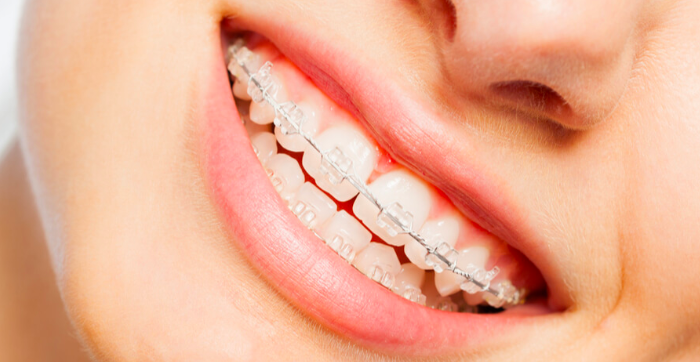 Ceramic braces at Growing smiles Orthodontic clinic in Bangalore