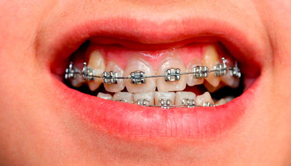 Traditional metal braces in Bangalore
