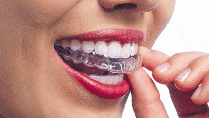 Invisalign invisible aligners by Orthodontists in Bangalore at Growing Smiles