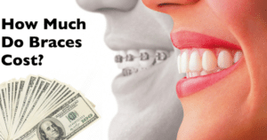 Dental braces cost in Bangalore