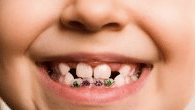 Early childhood braces at growing smiles orthodontics