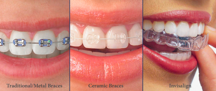 Step 7 - Orthodontic braces selection​