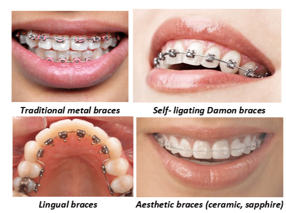 The different types of orthodontic braces an orthodontist provides