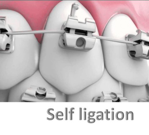 What is Self Ligating braces and how much does it cost