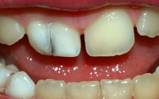 Check for Discoloration & Mobile Milk Teeth