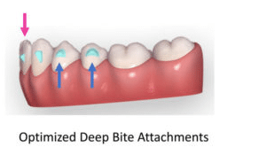 Deep bite correction with Invisalign