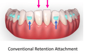 Invisalign Orthodontics with retention