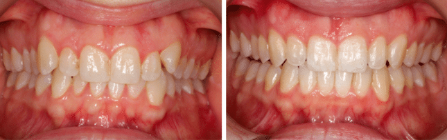 My Invisalgn treatment, before and after at Growing Smiles Orthodontics in Bangalore