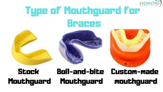 Types of mouthguards