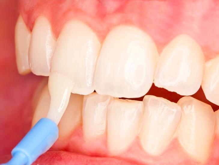 Fluoride varnish prevents dental caries in kids