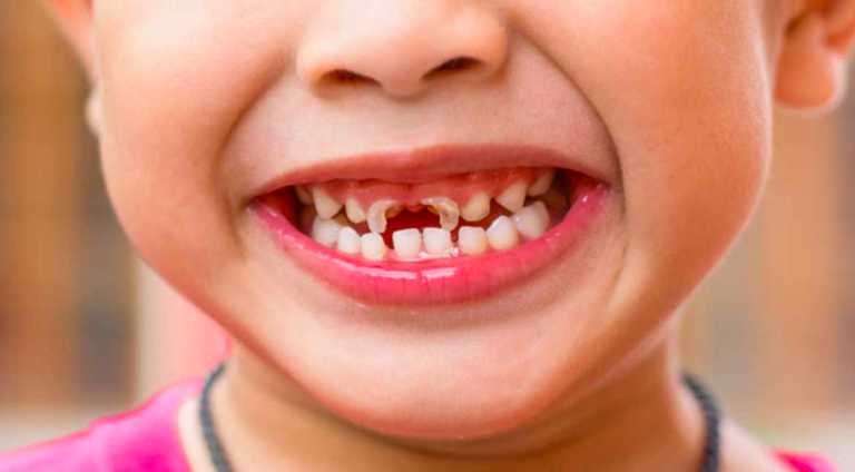 What is Early Childhood Caries