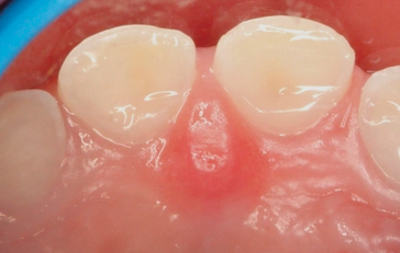 GC Tooth Mousse For Enamel Erosion