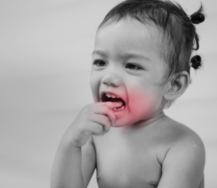Tooth Mousse Teeth Sensitivity