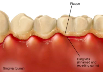 Fluoride Protects Teeth From Plaque & Microorganism