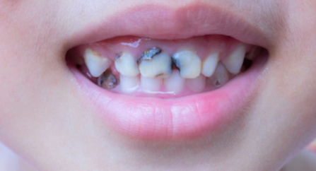 How Does Fluoride Help In Preventing Dental Caries