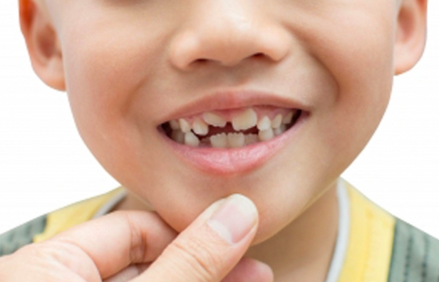 How do Pediatric Dentists Use Fluoride to Help Prevent Dental Caries in Kids