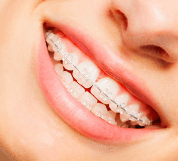 Ceramic braces at Growing Smiles Whitefield Orthodontists in Bangalore