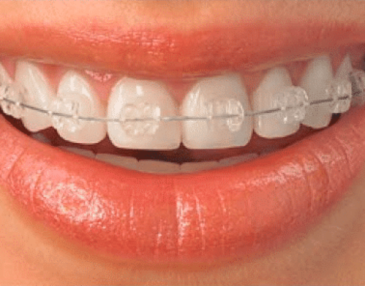 Ceramic self ligating Braces by Orthodontists in Bangalore at Growing Smiles