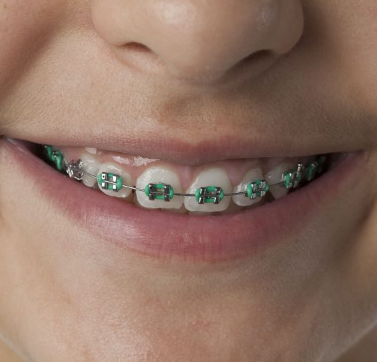 Close up of dental braces in the mouth of a teenage girl